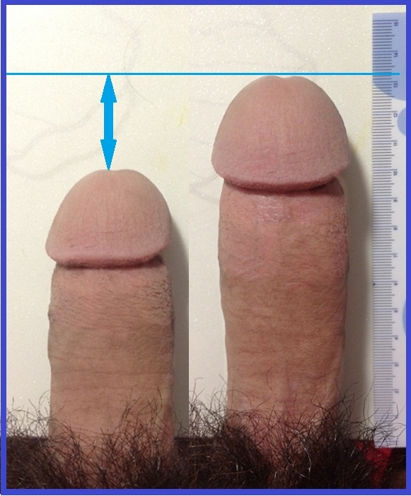 Why Is My Penis