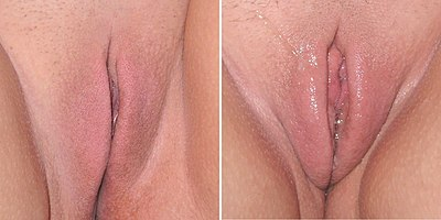 vagina when aroused