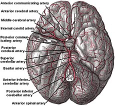 image of Lacunar Stroke Syndrome Icd 10 Code 01