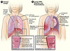 Pleurisy and pneumothorax.jpg
