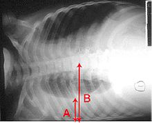 An X-ray showing a chest lying horizontal. The lower black area, which is the right lung, is smaller with a whiter area below it of a pulmonary effusion. There are red arrows marking the size of these.