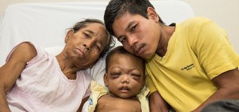 Indian Toddler With Protruding Eyes Slowly Going Blind Finally Has Treatment