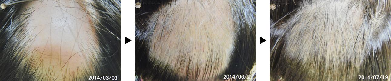 20代男性の円形脱毛症治療