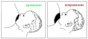 прикладывание к груди