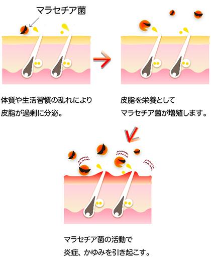 アクネ菌だけでなく、マラセチア菌も繁殖しやすい