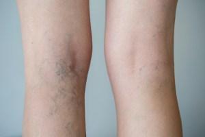 ways to treat varicose veins naturally
