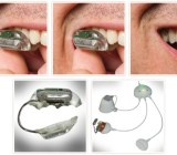 Sonitus Medical develops innovative products to prevent sudden hearing loss. The tech could be used for agents to replace the bulky ear pieces they use to stay in contact with home command. In-Q-Tel invested in 2009.