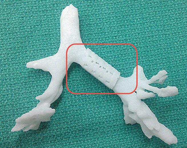 3D-printed-trachea