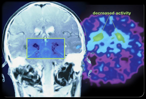Areas of the brain affected by Parkinson's Disease