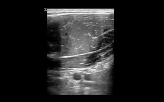 subclavian ultrasound
