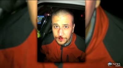 ABC NEWS A BLOODY GEORGE ZIMMERMAN