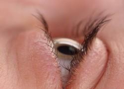 Las gotas con cortisona podrían generar glaucoma