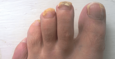 a_patients_left_foot_-_after_ten_weeks_of_terbinafine_oral_treatment