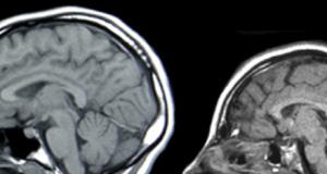 Comparación entre desarrollo de la cabeza de un niño con microcefalia.