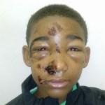 Blacks and the Police: Excessive Punishment Underscores White Privilege