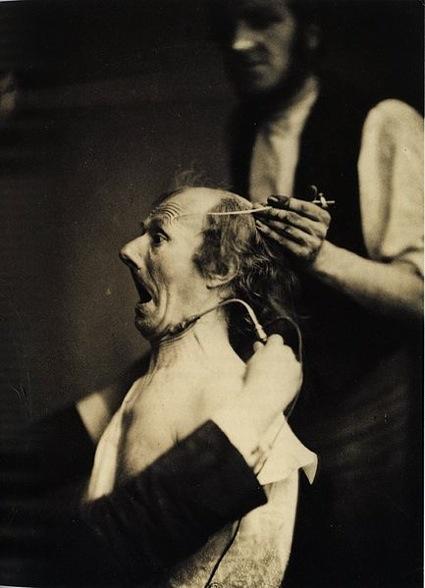 0Guillaume_Duchenne_de_Boulogne_performing_facial_electrostimulus_experiments_(2).jpg