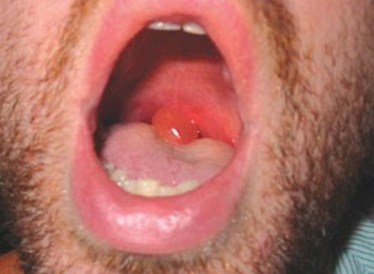 Swelling of the uvula ...