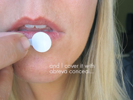 Abreva2 Dont let a cold sore ruin your day   Abreva Conceal can help!