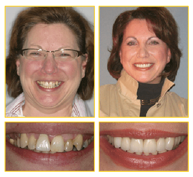 Quandt-before-and-after - Green Bay Dentist