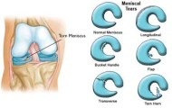 types of meniscus tears