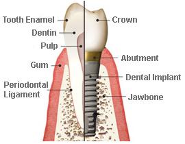 titanium-dental-implant