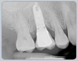 tooth_x-ray