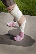 Bandages & Socks on a Dogs Rear Feet