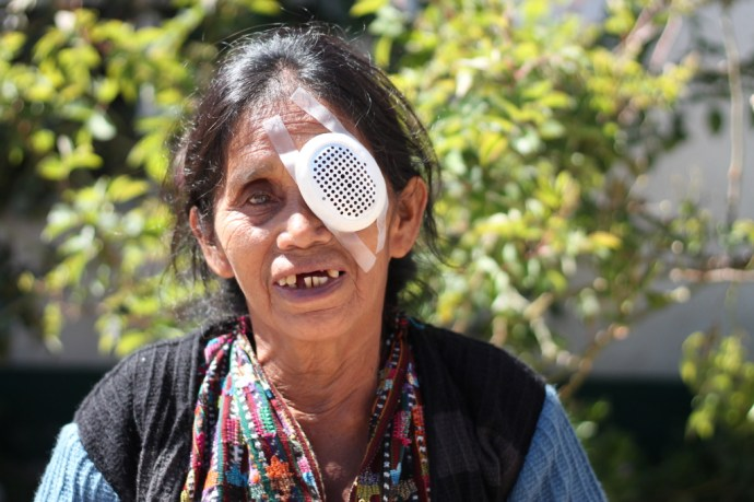 Santa Morales Pilo Bilateral Cataract