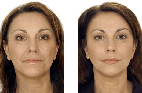 http://i1.wp.com/ww1.prweb.com/prfiles/2011/10/11/10964960/beforeAfter12%20dermal%20filler.jpg?w=1500