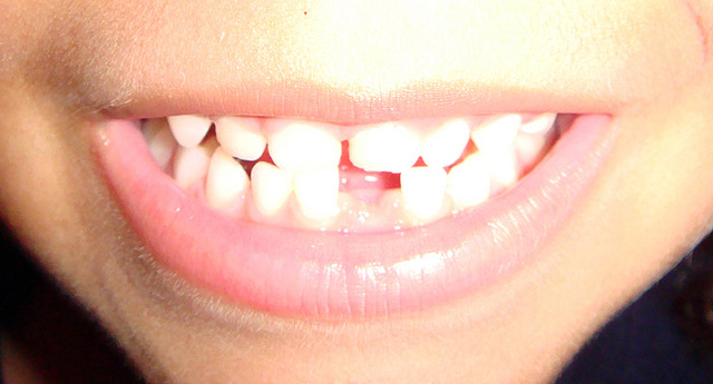 The Tooth Fairy is now leaving an average of $3.70 per tooth under that pillow. (ragamufyn / Flickr)