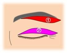 眼瞼下垂_切除部位