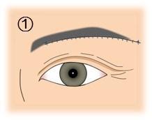眼瞼下垂_眉毛の下切除