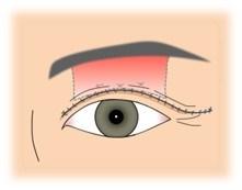 眼瞼下垂_切開部分を閉じる
