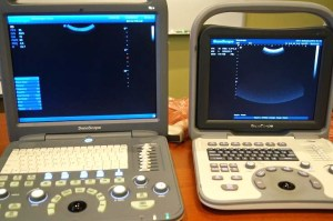 Sonoscape S2 and A6 portable ultrasound machines for sale new with one year warranty 858 731 7278