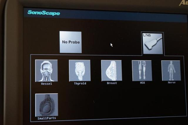 Sonoscape A6 portable ultrasound vascular calculations and presets