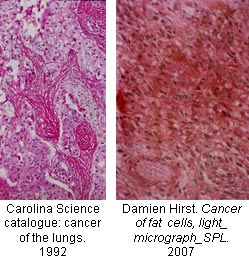 17-cancer
