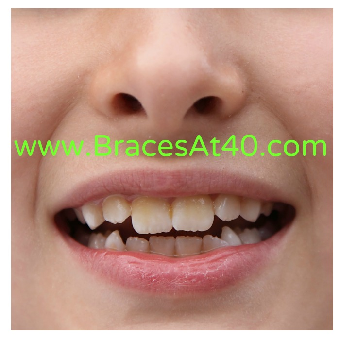 Think, that Alternatives to braces for adults can