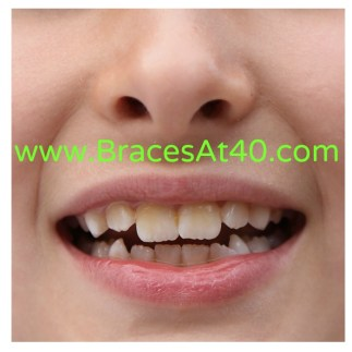 straight teeth dating How do smiledirectclub invisible aligners straighten teeth our invisible aligners come as a set of multiple aligners each aligner will make slight adjustments to tooth position, a process.