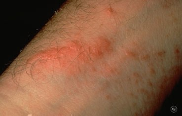 Poison ivy  oak  and sumac   American Academy of Dermatology poison ivy symptoms rash jpg