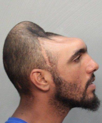 L'uomo con la testa a metà è stato arrestato