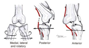 Knee-Dislocation