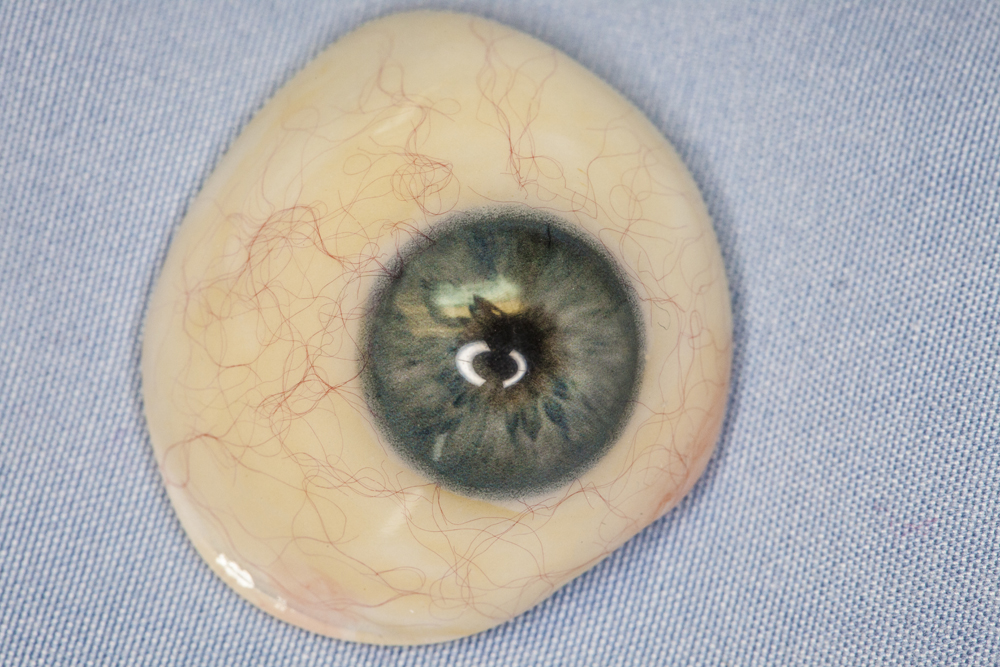prothesis eye A prosthetic eye can improve the appearance of the affected eye socket for most people it is vastly preferable to wearing an eye patch or bandage if the entire eye is.