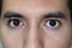 Hydrophilic eye