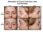 skin-glow-results-721510