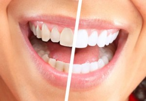 what are porcelain veneers 2