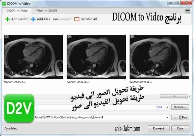 برنامج تحويل الصور الى فيديو متعدد الاستعمالات DICOM to Video