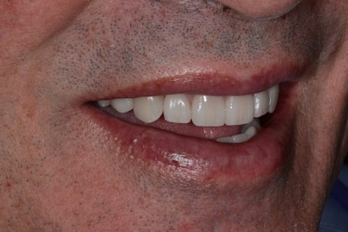 Veneers After Image