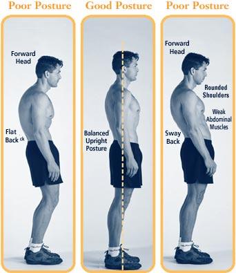 Postur Tubuh yang Benar tu Menyehatkan! Contoh yang salah