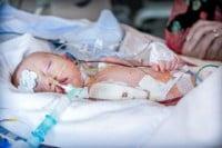 pediatric sepsis management