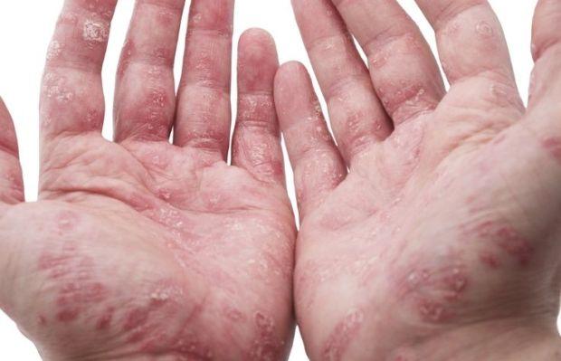 La piel la eccema el tratamiento